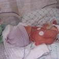 Uno studio dell'Università di Adelaide in Australia ha mostrato che i bambini nati prematuri in adolescenza recuperano il divario cognitivo inziale rispetto ai bambini nati a termini grazie a un ambiente di crescita stimolante.